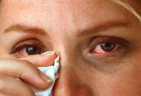allergic eyes